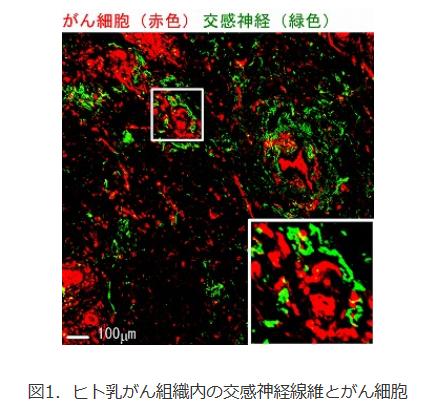 がん細胞と自律神経の関係性を解明
