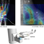 神経の非侵襲生体磁界計測に成功