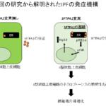 徳島大学とAMEDが共同で、特発性肺線維症の原因を解明