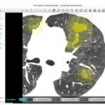 NTTデータがAI画像診断で腎臓の異常検出を可能に