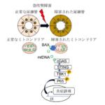東京大学が、急性腎障害のメカニズムを解明